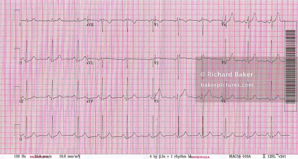 A copy of an ECG (Electrocardiogram) readout from a 60 year-old British male experiencing from Type 2 Hypertension (high blood pressure), on 22nd October 2019, in London, England. Electrocardiography is the process of producing an electrocardiogram (ECG or EKG[a]), a recording – a graph of voltage versus time – of the electrical activity of the heart using electrodes placed on the skin.