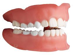 teeth 007 Teeth Dentures