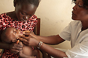 Chacklie Soman, 17, holds her son Leo Karsor, 8 months, who is malnourished, while he has is armed measured by a health worker during growth monitoring at the Pipeline health center in Monrovia, Montserrado county, Liberia on Monday April 2, 2012.