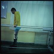 A mine victim takes a rehabilitation training at a hospital.