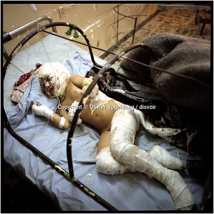 Iraq. Baghdad. Child badly burned by bombing in Aadamieh children hospital where a cemetey has been made outside.
