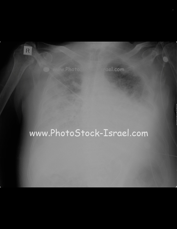 Chest X-ray of a 84 year old male patient suffering from metabolic acidosis, and chronic airways obstruction