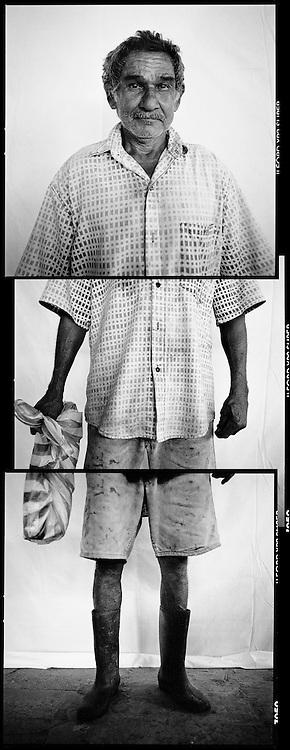 Victime du pesticide nemagon. Juillet 2010. Palmar, Costa Rica.