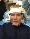 EXCLUSIVE Now the Human Ken Doll has a HAIR transplant to restore his locks