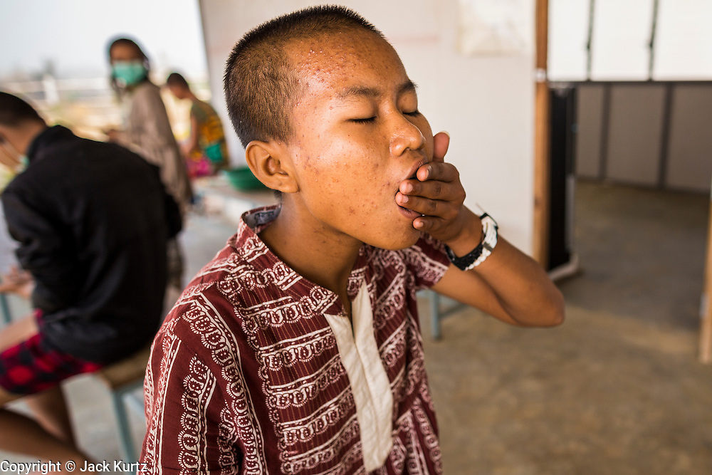 03 MARCH 2104 - MAE KASA, TAK, THAILAND:  A patient swallows some of the 20 pills she has to take every day for treatment of drug resistant tuberculosis at the Sanatorium Center for Border Communities in Mae Kasa, about 30 minutes north of Mae Sot, Thailand. The Sanatorium provides treatment and housing for people with tuberculosis in an isolated setting for about 68 patients, all Burmese. The clinic is operated by the Shoklo Malaria Research Unit and works with several other NGOs that assist Burmese people in Thailand. Reforms in Myanmar have alllowed NGOs to operate in Myanmar, as a result many NGOs are shifting resources to operations in Myanmar, leaving Burmese migrants and refugees in Thailand vulnerable. Funding cuts could jeopardize programs at the clinic. TB is a serious health challenge in Burma, which has one of the highest rates of TB in the world. The TB rate in Thailand is ¼ to ⅕ the rate in Burma.        PHOTO BY JACK KURTZ