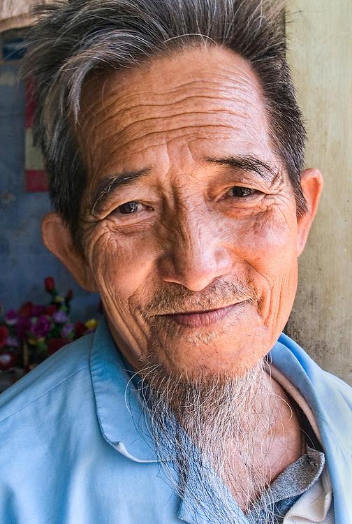 Man in Nursing Home, Vietnam