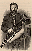 American Civil War 1861-1865.  Casualty displaying the healed stump after removal of his foot by Pirogof amputation.  Wood engraving 1865.