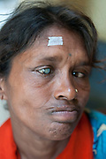 India, Bihar. Mastichak. Akhand Jyoti Eye Hospital. A patient with cataract, about to have an operation .