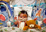 One month-old Loretta Brenzek recovers in her bed after having heart surgery in the Pediatric Intensive Care Unit at Rush University Medical Center on Friday December 24, 2010. <br /> <br /> (William DeShazer/ Chicago Tribune) B58936644Z.1<br /> ....OUTSIDE TRIBUNE CO.- NO MAGS,  NO SALES, NO INTERNET, NO TV, NEW YORK TIMES OUT, CHICAGO OUT, NO DIGITAL MANIPULATION...