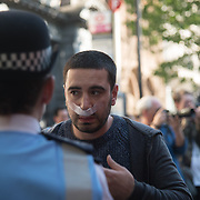 A guy have a nose breed believe been punch by a protestor during the protests against the Turkey President visiting Downing street invited by Therese May chanting Erdogan is a terrorist with heavy police of guards on 15 May 2018, London, UK.