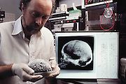 (1992) DNA testing in anthropology. A researcher with a mummified human brain. Dr. William Hausworth holding a 8000-year-old brain.  In the background is equipment used in purifying synthetic DNA primers used in PCR analysis of ancient brain DNA.   This and 90 similar specimens were found in a Native American burial pit, and are thought to be about 8000 years old. DNA fingerprinting of the specimens is being used to study family relationships within the group and to look for signs of hereditary diseases at the University of Florida.  MODEL RELEASED