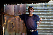 Phillippi Township, informal settlement. Cape Town. South Africa. Mr  Makeleni worked as miners from the 1980 to the 2006; the X-Ray he did in 2009 show he has silicosis and TB.