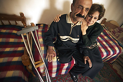 Salah Izat, 51, and his wife Amira Khalid, 44, sit in their home in Baghdad, Iraq, March 2, 2004. Izat's home was destroyed in March 2003 when an American missile hit just outside their front door. A year later, Izat is getting better pay wages, but has lost his right leg from diabetes. He says the lack of medical resources after the war made him unable to get proper attention for his ailing leg, possibly being the reason it became so gangrenous that it had to be amputated.