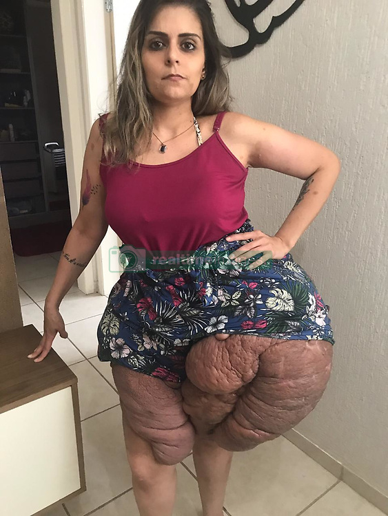 """EXCLUSIVE: By Sanjay Pandey and Supito Maity in Sao Paulo A 28-year-old Brazilian woman crippled by sheer weight and disproportionate size of tumours in her lower limbs is pleading for help from the netizens. Karina Rodini, who was fired from her job and is forced stay unmarried due to her medical condition, says the disease took a heavy toll on her personal and professional life. Karina has spent most of her adult life hiding it in public. But after last year's botched up surgery in a state-run hospital, her 'legs have become double the size and no clothes fit her', making her a pariah in the locality. Karina suffers from type one neurofibromatosis, a genetic condition marked by changes in skin colour and the growth of non-cancerous cysts in different parts. The disease affects one in 4000 people globally. According to the US National Library of Medicine, patient with type one neufibromatosis are born with one mutated copy of the NF1 gene in each cell. It said, """"In about half of cases, the altered gene is inherited from an affected parent. The remaining cases result from new mutations in the NF1 gene and occur in people with no history of the disorder in their family."""" Karina, from Sao Paulo, was just two when 'coffee milk' patches started to appear on her skin. She said due to the lack of formation of lumps, the doctors could barely make out what ailed her. """"I was diagnosed with neurofibromatosis when I was only two years old, at first it was only 'coffee milk' patches so the doctor couldn't do anything because there were no lumps or tumours,"""" she said. The cysts started to show up almost nine years later. One year later, when she was 12, Karina underwent a surgical procedure to remove a cyst, weighing around nine kilograms, from her uterus. According to her, the cavity gave her a semblance of a pregnant woman. Being the oldest child among three, Karina has always received love from her mother, Fatima M. Abou Ali, 58, a single woman, who raised"""