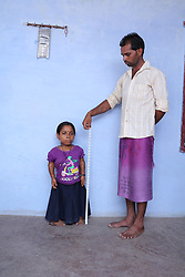 EXCLUSIVE: 28 yr old woman named Santosh from Madhya Pradesh state of India is only 33 inches tall . She is known as 'Bua' in her village means Aunt. She says that her life is useless because god did not create her normal like other women in her peer group. 13 Feb 2018 Pictured: Shortest Woman. Photo credit: Rare Shot News /MEGA TheMegaAgency.com +1 888 505 6342