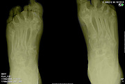 Feet X-ray of an 83 year old male patient suffering from Rheumatoid Arthritis (RA)