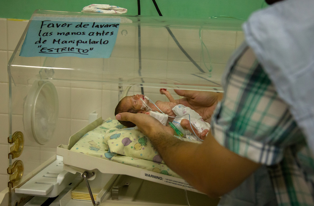 """Dr. Daniel Alvarez a pediatrician Hospital San Benito holds very premature baby. """"We call these children little miracles because it's a miracle that he's alive with the conditions we have in this hospital,"""" he said. """"She was premature, a condition that is associated with adolescent mothers. There is a restriction of growth because the womb is not big enough. Her lungs were not developed enough to be outside of the mother's womb so early. We didn't think that she was going to survive. But she has proven us wrong and is battling to survive and to eat. Thanks to God she has progressed really good. But she still has many complications in her way."""""""