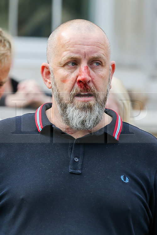 """© Licensed to London News Pictures. 07/09/2019. London, UK. A Pro Brexit protester is seen bleeding from the nose as he was by the confronted police officers in Whitehall as anti-Brexit protesters take part in """"Defend our Democracy and Stop Brexit"""" demonstration in Whitehall, Westminster. The protesters are demonstrating against the British Prime Minister Boris Johnson's intention to prorogue Parliament until 14 October. Photo credit: Dinendra Haria/LNP"""