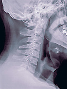 Cervical spine x-ray of a 40 year old male patient side view