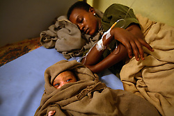 Yekaba Kerebet, 15, rests in the hospital after finally giving birth to a baby boy in Bahir Dar, Amhara Region, Ethiopia on May 19, 2007. She had been in labor for three days with her first born. She later developed a fistula, a common result of prolonged obstucted labor and early marriage. Women who have fistulas are often shunned in their villages and thought of a cursed by God.