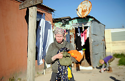 Cape Town- 180830 Nokwanda Tyongozi from kuyasa Khayelitsha. Albinism is a genetic condition. Primarily, albinism affects the hair eyes skin and vision The most common cause of albinism is an interruption in the functioning of the enzyme tyrosinase Picture:Ayanda Ndamane/ African News Agency ANA