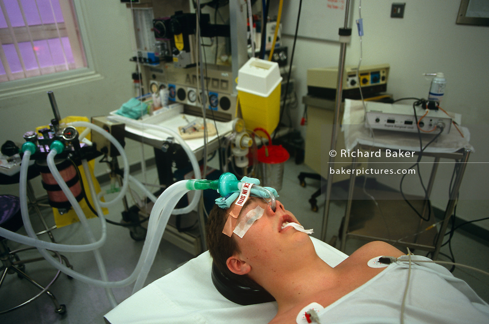 We are looking into the face of a young unidentified male patient before his wisdom tooth extraction procedure at the famous St. Bartholomews (Barts) Hospital in London, England. His eyelids have been taped shut, lying unconscious on his back with his head supported, prepped for this brief operation. Surrounding him is various medical equipment including anaesthetic gas that is fed through his nose by plastic tubes. it is spotlessly clean in this operating room, carefully, avoiding infection or bacterial problems like MRSA. Barts is Britain's oldest hospital - founded in 1123 - and boasts a progressive policy of encouraging day-surgery for out-patients allowing patients to return home soon after their minor operations.