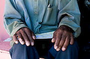 Philippi Township, informal settlement. Cape Town. South Africa. This former miner worked in gold mines between the 1967 and the 1991. He  developed first asthma and then TB. In 1997 he started the treatments again TB even do he was infected by TB other 3 times. The mine company never paid for  his medical care.