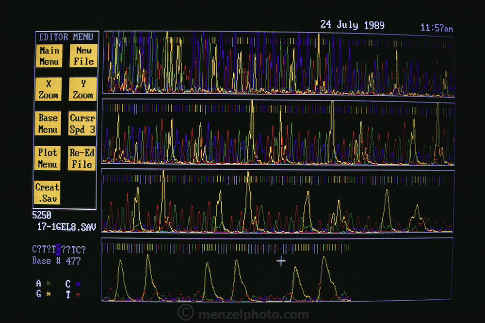 (1992) Computer screen display of DNA analysis at the home office of Forensic Science Service in Aldermaston, England.