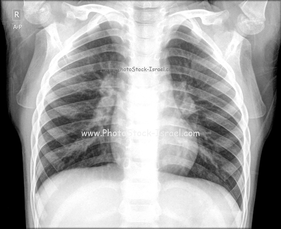 Chest x-ray of a 3 year old female baby with signs of pneumonia in both lungs Front View