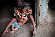 Badel, 2, a boy presenting a severe neurological disorder is being cared for by a local boy, Abhisheik, 3, while sitting near their home in the impoverished Orya Basti colony of Bhopal, Madhya Pradesh, India, near the abandoned Union Carbide (now DOW Chemical) industrial complex.
