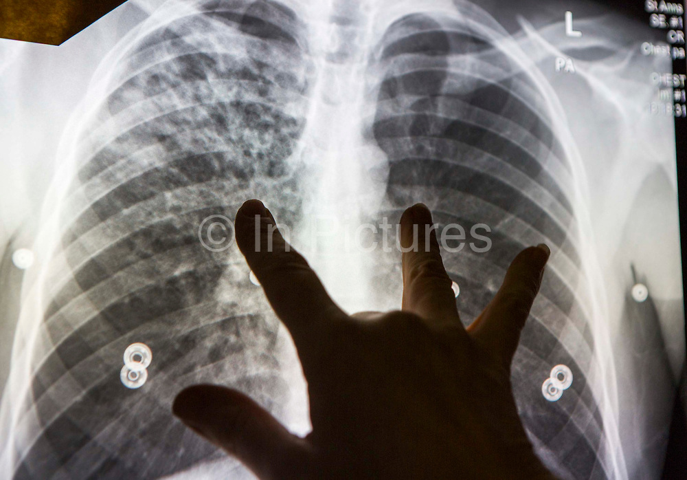 A radiographer reviews an abnormal chest x-ray and demonstrates the showing that suggests active tuberculosis disease.  An abnormal digital chest x-ray is shown on the screen in the NHS's Mobile X-ray Unit (MXU).  The chest x-ray was taken as a public health screening for Tuberculosis (TB).  The van is parked outside a hostel in central London and the visit is part of a public health intervention for Active Case Finding for TB in hard to reach groups. The rates of TB in London are higher than any other Western European capital and is a major public health problem. TB is an infectious disease, but treatable and curable if diagnosed in time. Early diagnosis is a key to TB control and Active Case Finding is an important part of this.