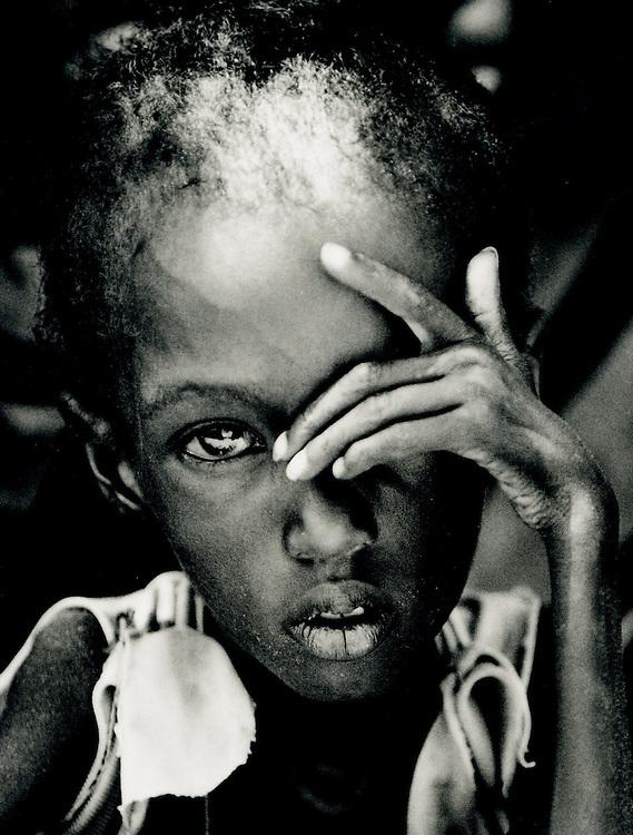 Somalia - 1992 - a child suffering from the famine in Somalia