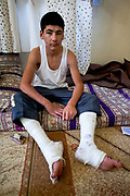 Adnan Hoshum, a teenager born on January 1st, 1995 shows his body injuries following his escape from Syria on Friday, May 25, 2012, along the border with Turkey. Ever since he was caught in the village of Kensafra the Jabel Ezawia region (English: Corner of Mountains) by the Syrian state army he could no longer be a schoolboy to attend his classes. He was beaten badly kept in jail for one day interrogated and then released while his village was being shelled. Running away for his life, Adnan a teenage boy was injured from the shrapnel of various artilleries allegedly used by the Syrian government to bomb his village. While he knows nothing about the fate of his mother and three of his little brothers, he said that his father was killed by the Syrian Armed men. (Photo by Vudi Xhymshiti)