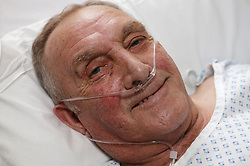 Patient recovering from a hip replacement operation,