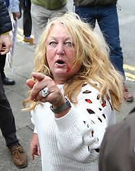 © Licensed to London News Pictures. 29/04/2017. Hartlepool UK.  UKIP party supporter with blood on her face after a fight with Pro EU campaigner from North East for Europe in Hartlepool, County Durham, before UKIP leader Paul Nuttall heads out on the campaign trail. Photo credit: Andrew McCaren/LNP