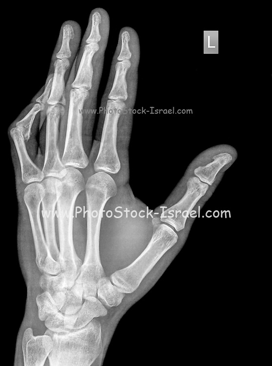 x-ray of wrist, hand and fingers of a 34 year old male patient with a dislocated left thumb due to contusion