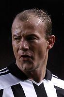 Fotball<br /> Premier League 2004/05<br /> Charlton v Newcastle<br /> 17. oktober 2004<br /> Foto: Digitalsport<br /> NORWAY ONLY<br /> Alan shearer wth a nasty cut