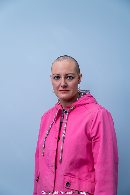 Julie Williams, has Alopecia and is a Changing Faces champion.