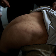 January 18, 2012 - Idleb, Syria: A local resident shows the marks in his back cause by violent physical abuse during interrogation by the Syrian Intelligence. The man claims to have been tortured with electrical shocks and constant beaten at the hands of the interrogators during a period of 10 days.
