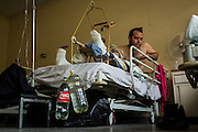 2016/05/29 - Barcelona, Venezuela:Leonardo Yepes has is leg stretched by plastic bottles that make weight in order to treat pacients with broken legs in Dr. Luis Razetti hospital in Barcelona. Leonardo had a car accident and his waiting for the operation for over a month. (Eduardo Leal)