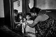 Before being dressed up, Rachi, 7, a girl affected by microcephaly and myoclonic epilepsy, is being dried with a towel by her mother Jyoti Jadav, 34, a '1984 Gas Survivor', while inside their home near Saifiya College, in Bhopal, Madhya Pradesh, central India.