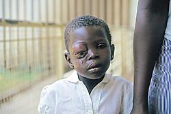 Boy With Eye Tumor, Nyanza Provincial General Hospital
