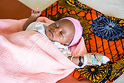 A sleeping baby on the childrens ward of St Walburg's Hospital, Nyangao. Lindi Region, Tanzania.