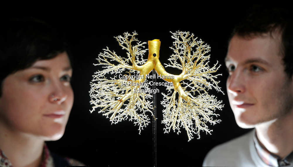Anatomy exhibition highlights body's beauties inside and out<br />  <br /> A remarkable exhibit highlighting intricacies of the human lung is a highlight in a new display exploring the aesthetics of anatomy.<br />  <br /> The striking artefact was created by injecting resin into the organ's air passages and dipping it into acid to corrode the spongey tissue, leaving a cast of the bronchial tree behind.<br />  <br /> The structure is one of more than 40 objects in the Visual Dissection: the art of anatomy exhibition at the University of Edinburgh's Main Library, many of which have never been on public display before.<br />  <br /> The exhibition of human and animal anatomy charts four centuries of medical endeavour. It includes woodcuts and engravings from the 17th century, Victorian wax and papier mâché models and exhibits that use the digital technologies of today.<br /> <br /> Emma Davey, University Conservation Officer and Doug Stevens, Exhibition Curator inspect a Cast of lungs, Marco resin dating from 1951<br /> <br />  Neil Hanna Photography<br /> www.neilhannaphotography.co.uk<br /> 07702 246823