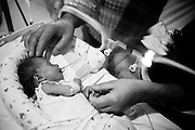 Newborns are even smaller, undefended. Parents are unquiet and machines sound their beeps. The most remembered feeling, for who was there on their first or last child, is impotence. Life is an incredible fight in tiny hands.<br /> In MAC, in Lisbon, Portugal, every year 6000 babies are born, about 6% of all country's births. About 150 of newborns in MAC weight less than 1500 grams.<br /> Meanwhile, the fate of the maternity-hospital is suspended as the portuguese economic crisis is pushing the Government to close the oldest working unit in Portugal.
