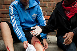 © Licensed to London News Pictures . FILE PICTURE DATED 08/08/2011. Hackney , UK . A man is injured during rioting on Clarence Road . He sustains a cut that runs deep through the tissue in his leg . A woman provides some basic first aid . The man did not want to wait for an ambulance , preferring to hop away from the scene after a few minutes . People riot and loot on the Pembury Estate in Hackney . Following a night of riots and looting in Tottenham , rioting and looting spreads to other areas . Photo credit : Joel Goodman/LNP