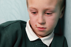 Young boy alone and unhappy,