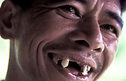 "Franscisco ""Kiko"" Aranas laughs a toothless laugh in hi fishing village, Gumacas bay, Aurora, Philippines"