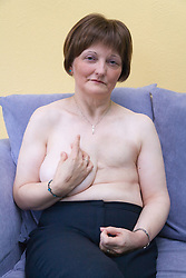 Woman who has had a mastectomy; the removal of a breast in response to breast cancer,