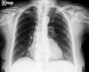 Normal Healthy Chest x-ray of a 72 year old female. front view